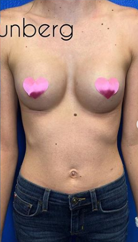 Breast Augmentation Before & After Patient #167