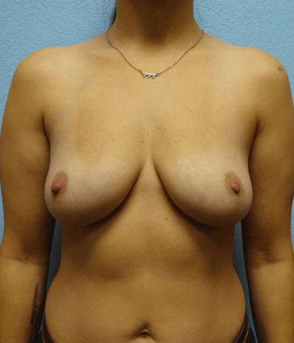 Breast Augmentation Before & After Patient #170
