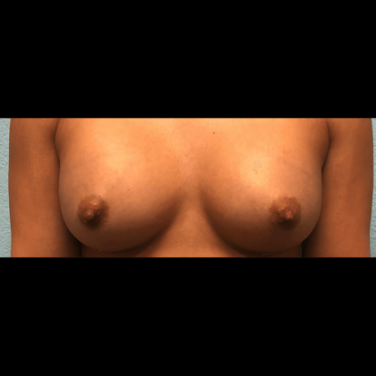 Breast Augmentation Before & After Patient #173