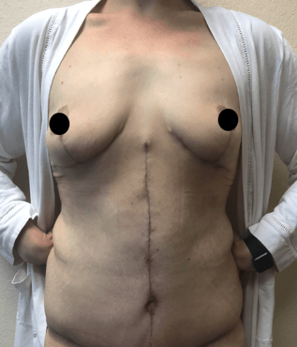 Breast Lift Before & After Patient #181