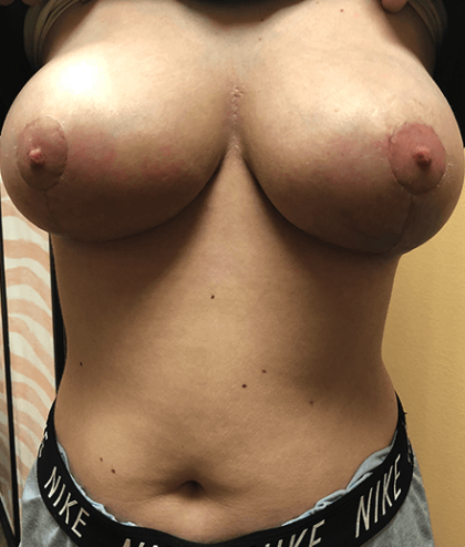 Breast Reduction Before & After Patient #184