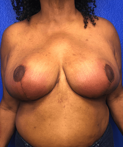 Breast Reduction Before & After Patient #187