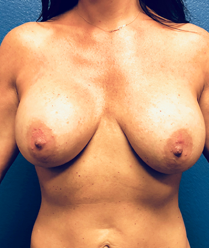 Breast Implant Revision Before & After Patient #190