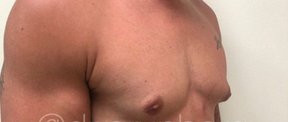 Liposuction Before & After Patient #196
