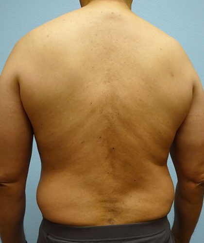 Liposuction Before & After Patient #202