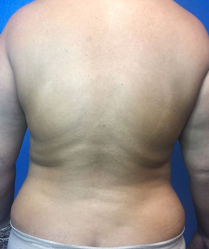 Liposuction Before & After Patient #205