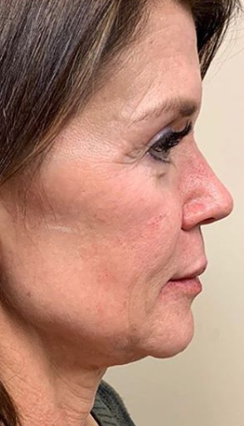 Morpheous8 Before & After Patient #131