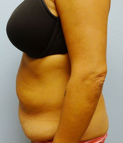 Tummy Tuck Before & After Patient #211