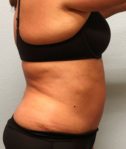 Tummy Tuck Before & After Patient #216