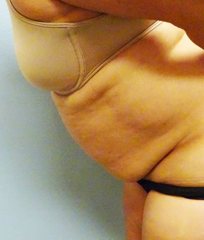 Tummy Tuck Before & After Patient #219