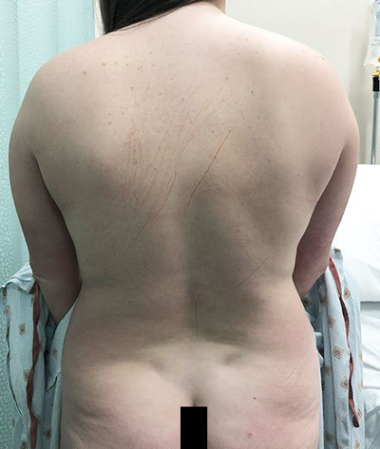 Vaser Liposuction Before & After Patient #228