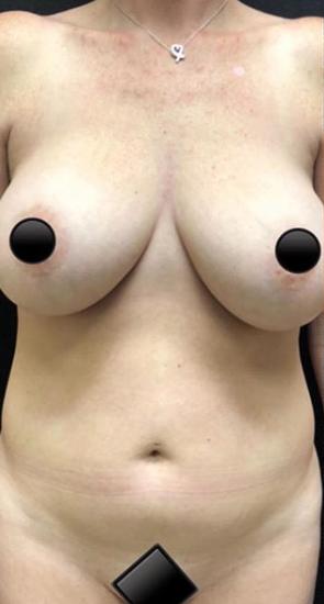 Vaser Liposuction Before & After Patient #240