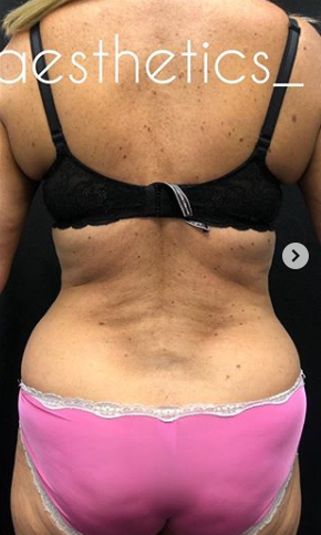 Vaser Liposuction Before & After Patient #243