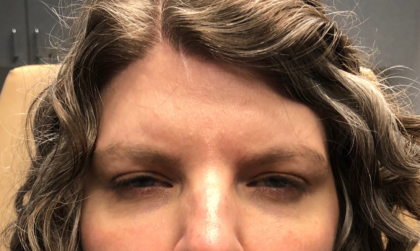 Botox Before & After Patient #672