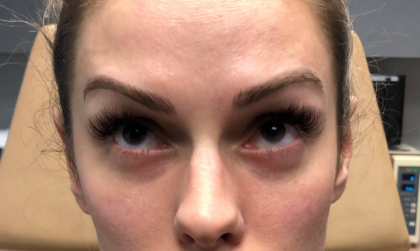 Botox Before & After Patient #673
