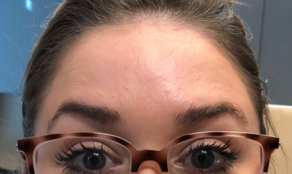 Botox Before & After Patient #674