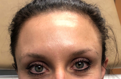Botox Before & After Patient #670