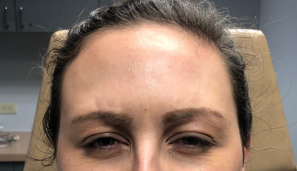 Botox Before & After Patient #629