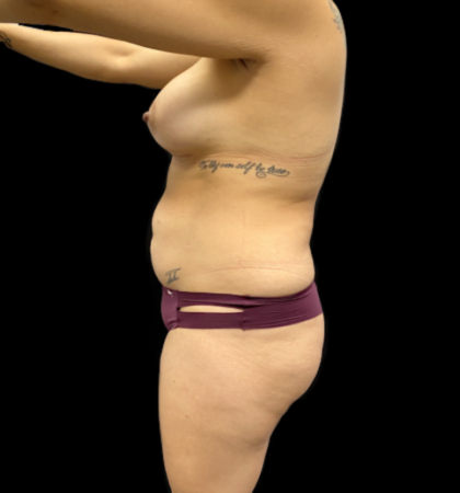 Vaser Liposuction Before & After Patient #912