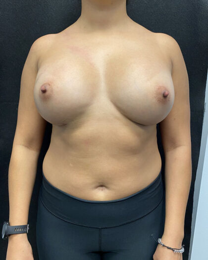 Breast Augmentation Before & After Patient #927
