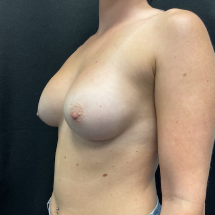 Breast Augmentation Before & After Patient #947