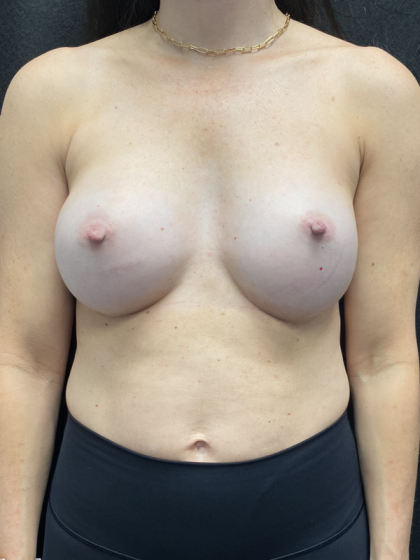 Breast Implant Revision Before & After Patient #1076